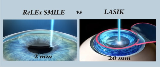 Difference Between Relex Smile Amp Lasik Laser Procedure