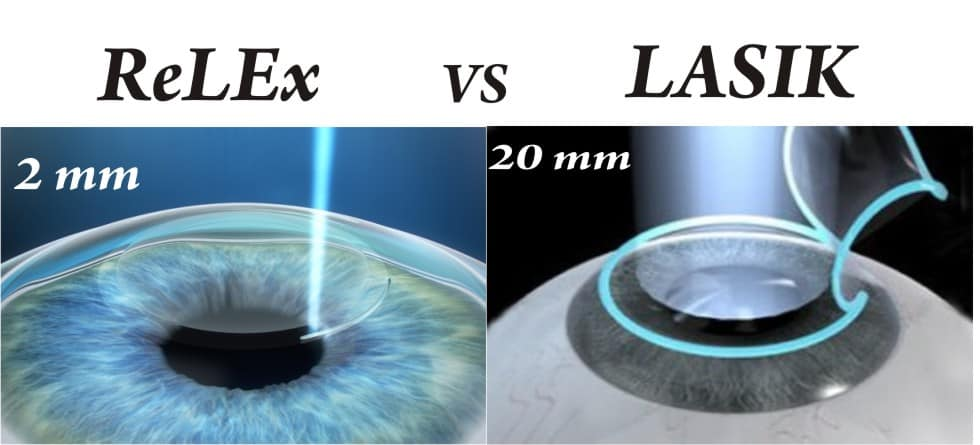 ReLEx SMILE VS LASIK